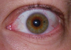 Temporary vision enhancement implants. Also known as a contact lens